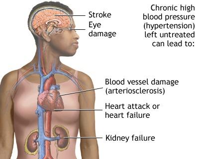 http://pinterest.com/infoonhbp/info-on-high-blood-pressure/, http://www.info-on-high-blood-pressure.com/African-Americans-and-high-blood-pressure.html