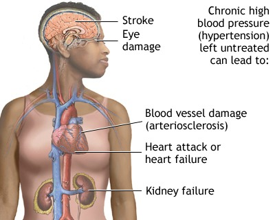 Health concerns of African heritage. https://www.info-on-high-blood-pressure.com/African-Americans-and-high-blood-pressure.html
