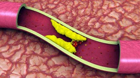https://www.info-on-high-blood-pressure.com/highbloodpressurehighcholesterol.html